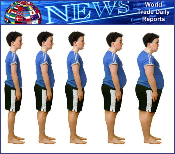Global-Obesity